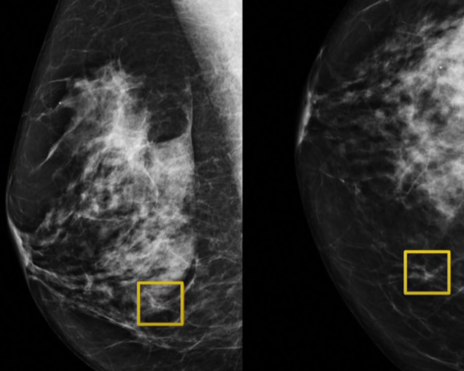 From CBC News: AI Detects Breast Cancer Better Than Doctors
